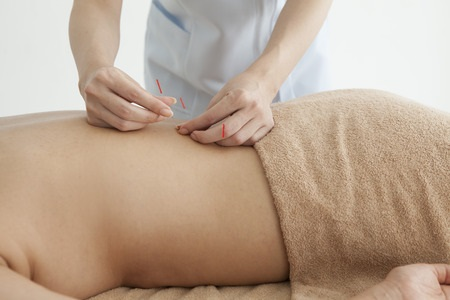 50116012 - women are receiving acupuncture treatment of back