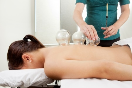 10988896 - acupuncture therapist placing a cup on the back of a female patient
